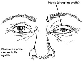 ptosis can be of one or both eyes