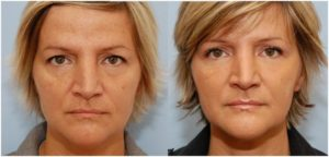 blepharoplasty-before & after
